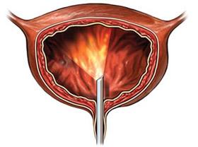 Лікування раку сечового міхура