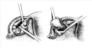 Применение лапароскопической резекции кисты
