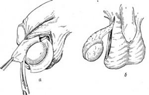 Операция по удалению яичка