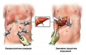 Методи видалення каменів при холециститі