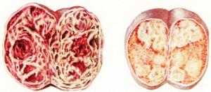 Рак яичка в разрезе