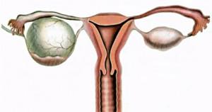 Киста правого яичника в сравнении со здоровым яичником