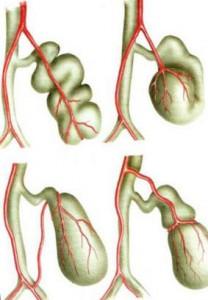 Видозмінення анатомічної форми жовчного міхура