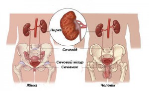 Протікання пієлонефриту у жінок та чоловіків