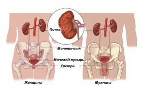 Протекание пиелонефрита у женщин и мужчин