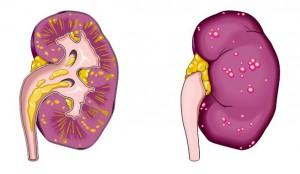 Вид почки во время протекания острого пиелонефрита