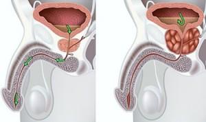 Сравнение здоровой простаты (слева) с пораженной раком предстательной железой (справа)