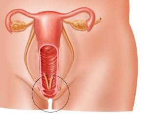 Процесс опущения матки