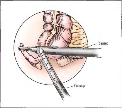 Удаление отростка методом лапароскопической аппендэктомии