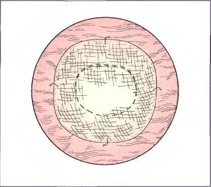 Закритий дефект передньої черевної стінки після накладення та фіксації латки