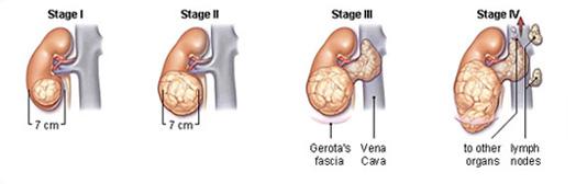 Чотири стадії раку нирки
