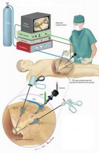 Лечение рака почки лапароскопическим методом