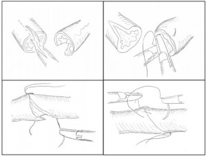 Накладення уретероанастомозу
