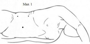 Типові місця проколів при трансперитонеальному (трансабдомінальному) доступі