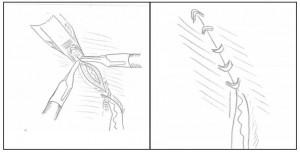 Лапароскопическая уретероцистонеостомия