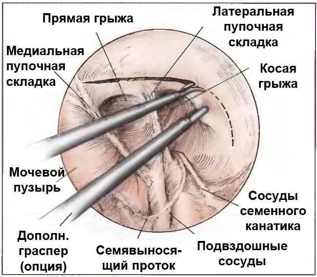 Возвращение грыжевого мешка на свою анатомическую позицию при герниопластике