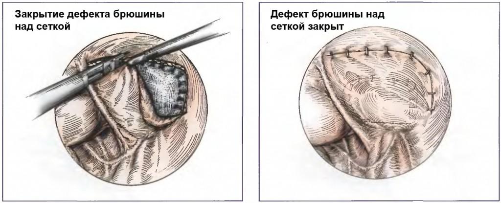 Окончательная фиксация сетки скобками при герниопластике