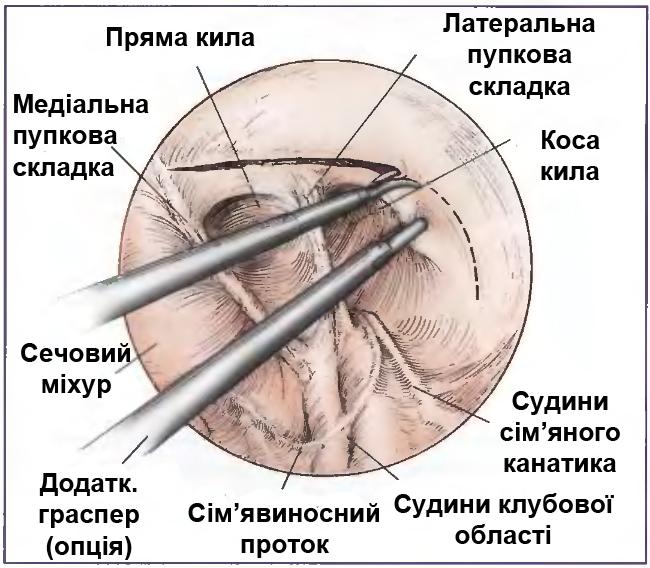 Повернення грижового мішку на свою анатомічну позицію при герніопластиці