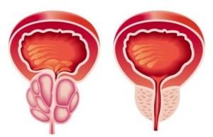 Аденома простаты по сравнению со здоровой простатой