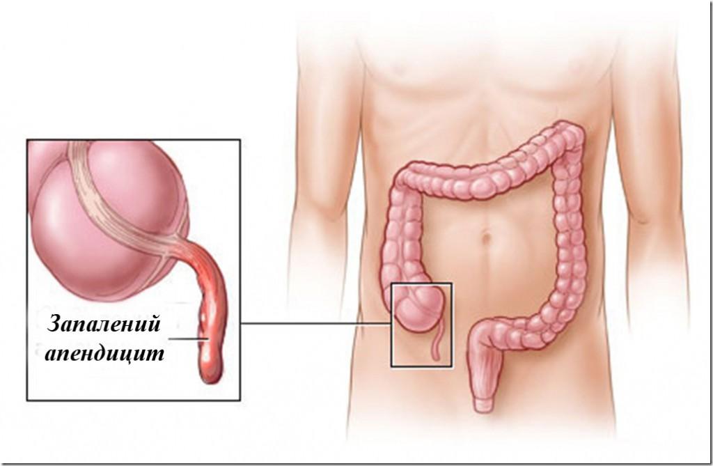 Гострий апендицит