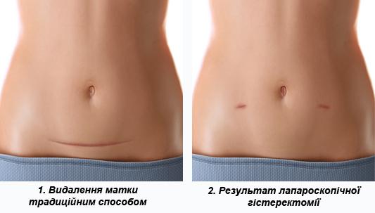 Естетичний результат від операції з видалення матки