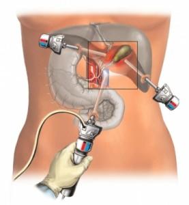 Лапароскопическая биопсия органов брюшной полости