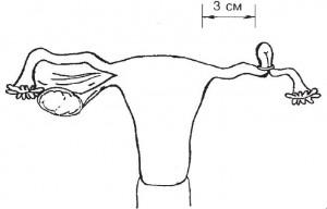 Вид маточной труб после наложения кольца для предотвращения беременности