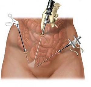 Метод лапароскопической аппендэктомии не оставляет шрамов на теле человека