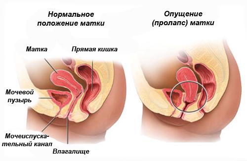 Сравнение нормального анатомического положения и опущения матки