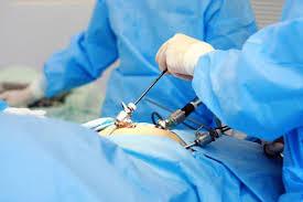 Лапароскопічне відновлення прохідності маткових труб
