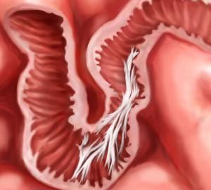 Розвиток спайкового процесу у кишківнику