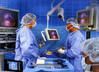 Проведення лапароскопічної операції