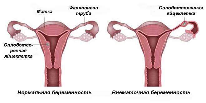 Нормальная и внематочная беременности