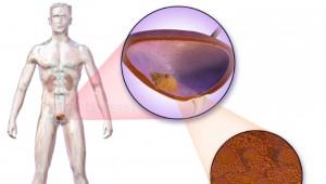 Дослідження пухлини сечового міхура
