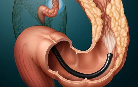 Діагностика раку товстого кишківника