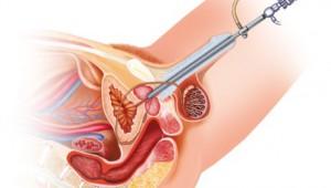 Використання цистоскопа в діагностиці дивертикула сечового міхура