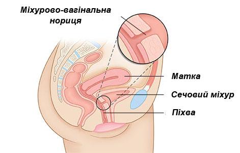 porno-suchki-konchayut-rakom