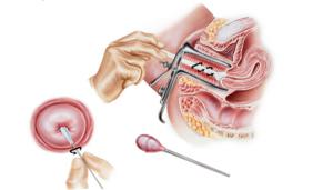 Взятие мазка с внутренней части шейки матки