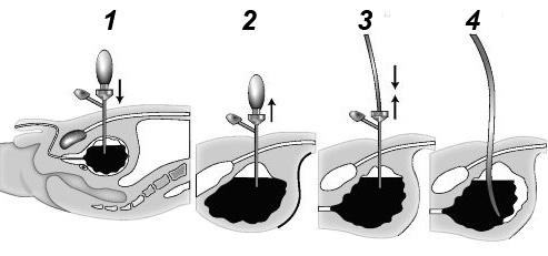 Порядок проведення троакарної цистостомії
