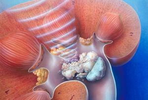 Эндоскопическое дробление конкремента (цистолитолапаксия)