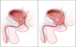 Сравнение здоровой простаты и гиперплазии простаты