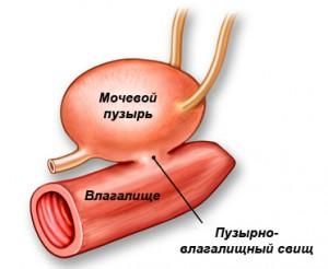 Анатомическое положение пузырно-влагалищного свища