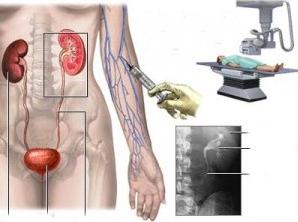 Урография как метод диагностики мочекаменной болезни