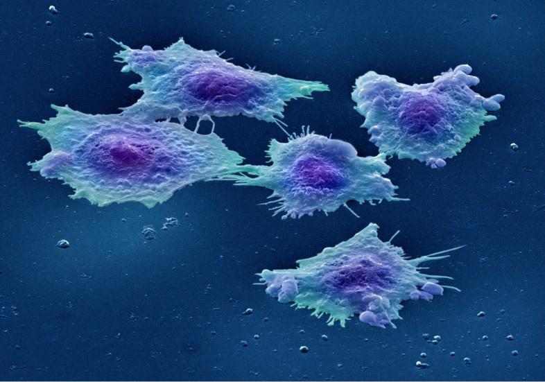 Клітини раку