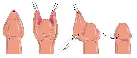 Послідовність проведення операції з обрізання крайньої плоті (циркумцизії)