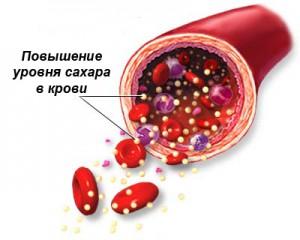 Повышение уровня сахара в крови при сахарном диабете