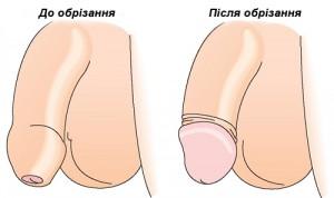 Статевий член до та після операції з обрізання крайньої плоті