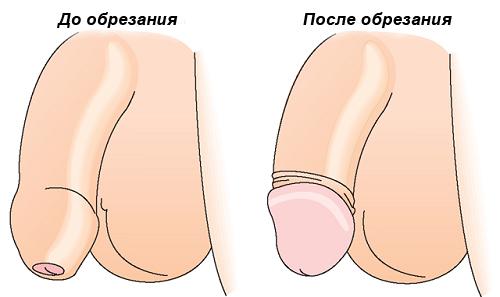 Половой член до и после операции по обрезанию крайней плоти