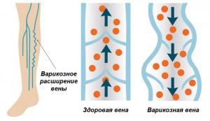 Варикозное расширение вены в сравнении со здоровым венозным сосудом