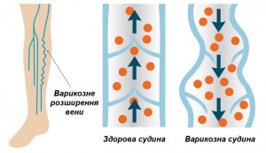 Варикозне розширення вени у порівнянні зі здоровою венозною судиною